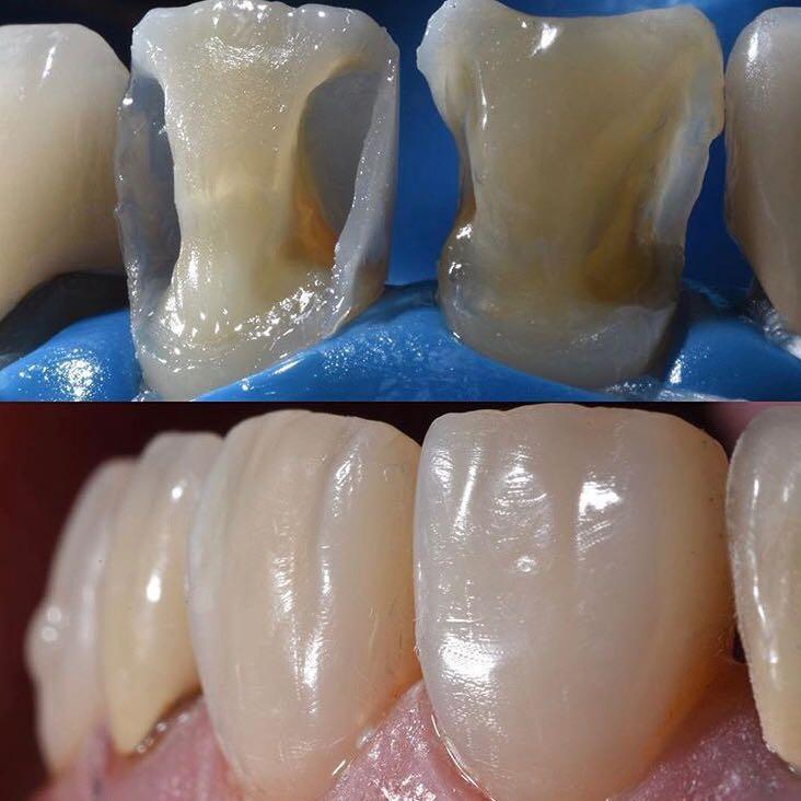 Эстетическое восстановление зубов в Бутово Парке