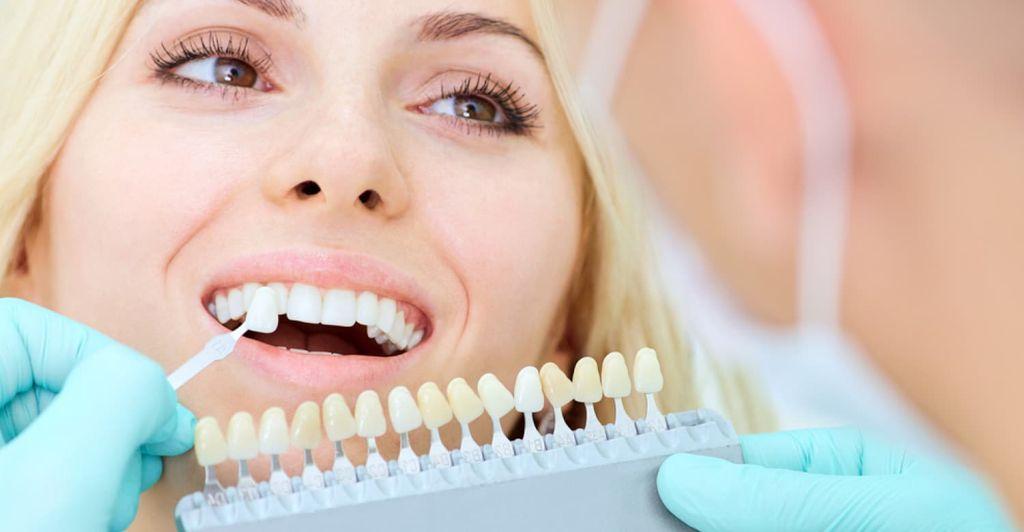 Косметическое восстановление зубов