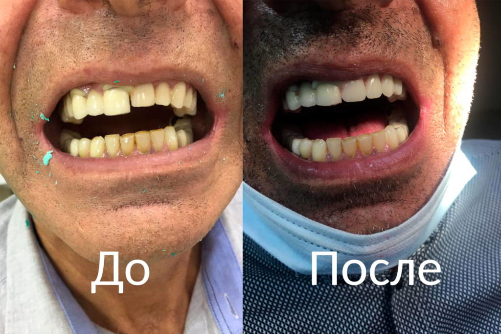 Исправление зубов До и после